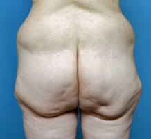 buttock-lift-indianapolis-dr-barry-eppley